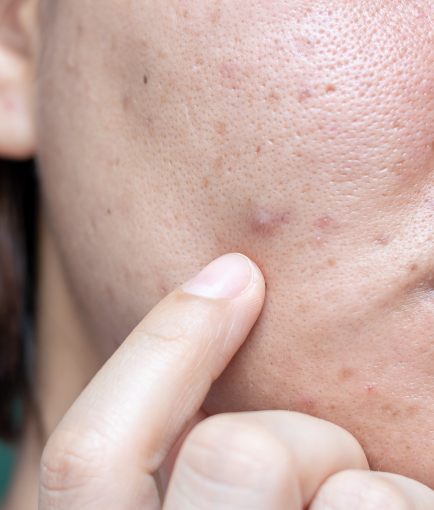 Close up on acne marks