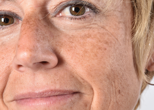 Close up of women with age spots