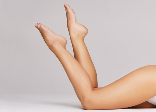 Woman's legs free of cellulite