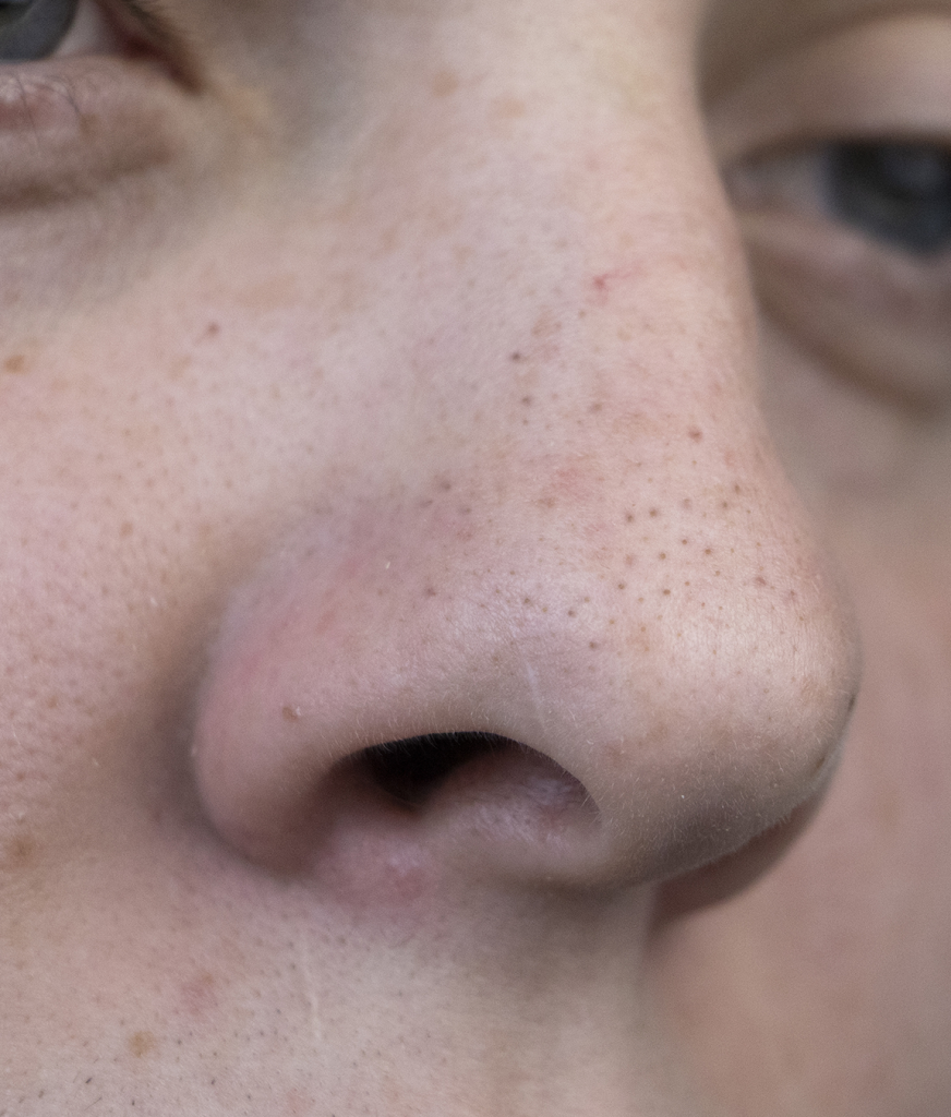 Close up on a face with enlarged pores