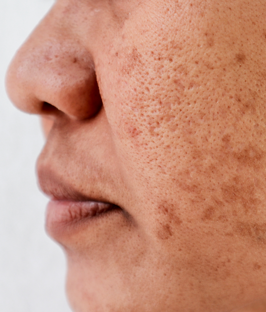 Hyperpigmentation on a woman's face