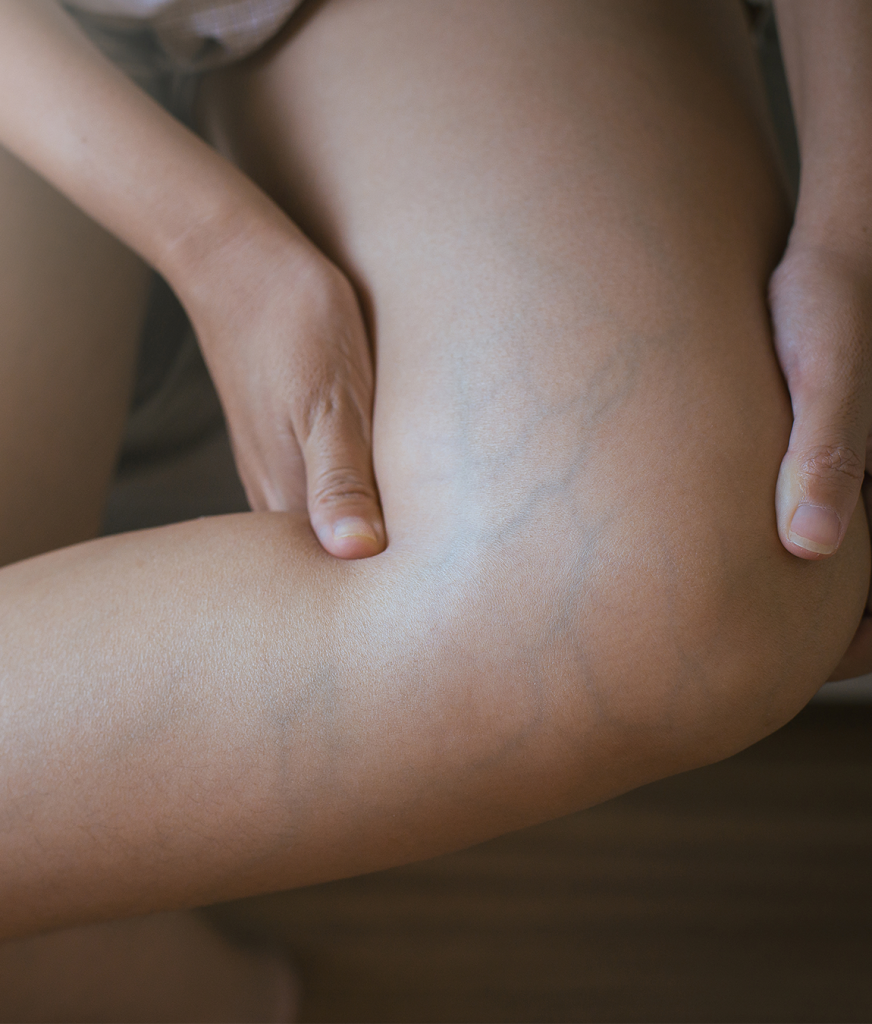 Spider and varicose veins on a woman's leg