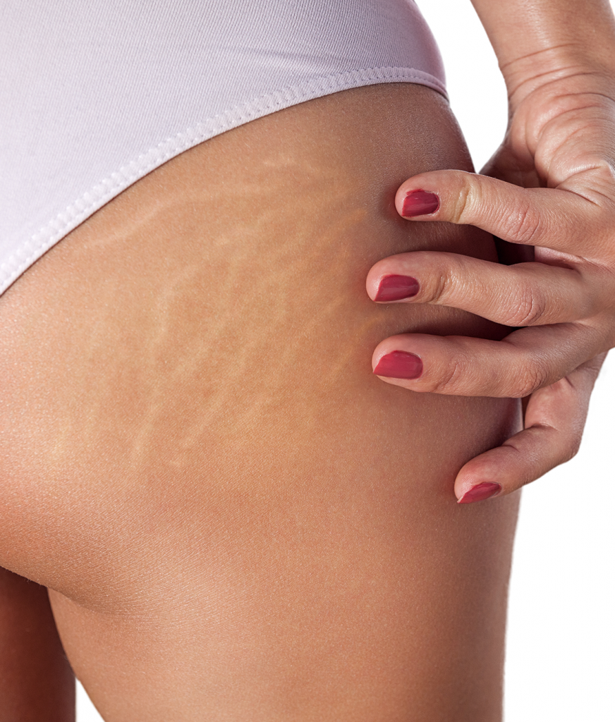 Stretch marks on a woman's buttocks