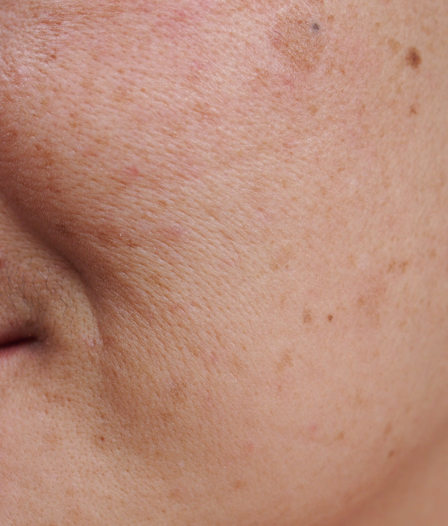 Close-up on sun-damaged skin