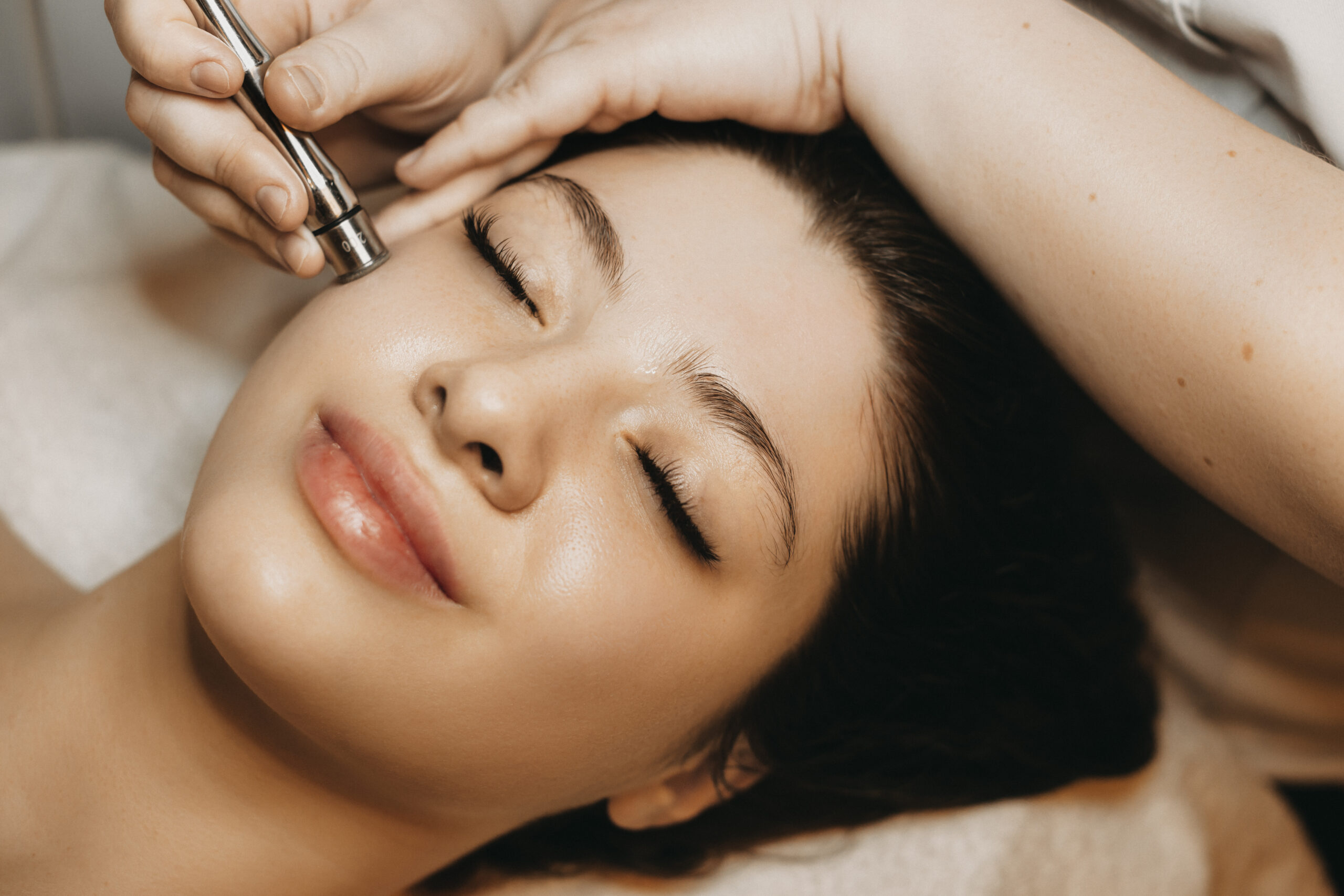 5 Reason You Need Microneedling